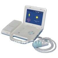 חמה למכירה ניידת/מחשב נייד סורק שלפוחית עבור לרפואה YSPBS0102
