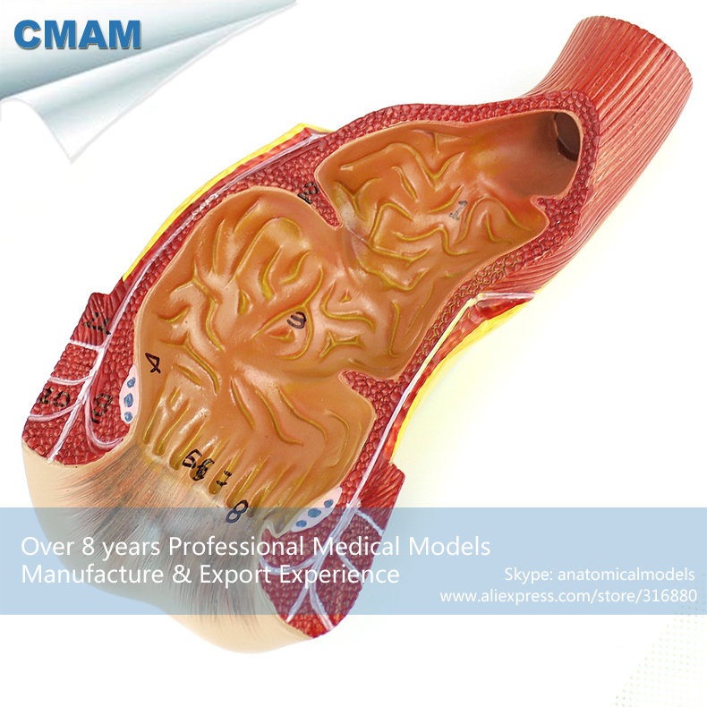 12552 CMAM-VISCERA15 Relief Model, Natural Size Ectum and Anal Canal Anatomy,  Medical Science Educational Anatomical Models 12437 cmam urology10 hanging anatomy male female genitourinary system model medical science educational anatomical models