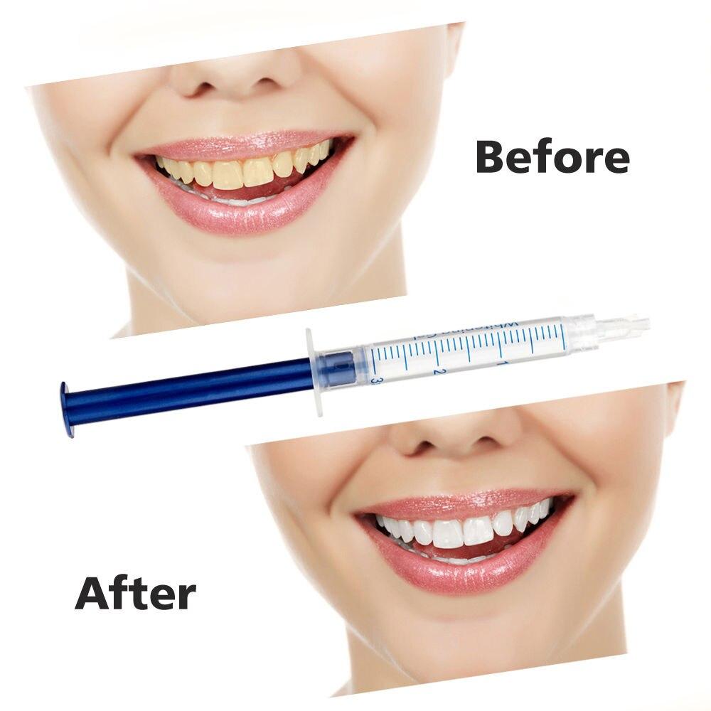 Zahnaufhellung Mundhygiene 2x3 Ml Professional Teeth Whitening Remineralisation Peroxid Dental Bleichsystem Oral Gel Kit Hilft Mit Zähne Empfindlichkeit