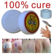 Chinese Natural horniness  Skin bumps Plantar wart Meat thorn Flat Toe Filamentous warts corns ointment removal