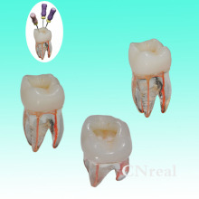 펄프 캐비티 및 염색 된 근관을 가진 RCT 연습 투명한 수지를위한 3 PC / lot 치근 근관 모델