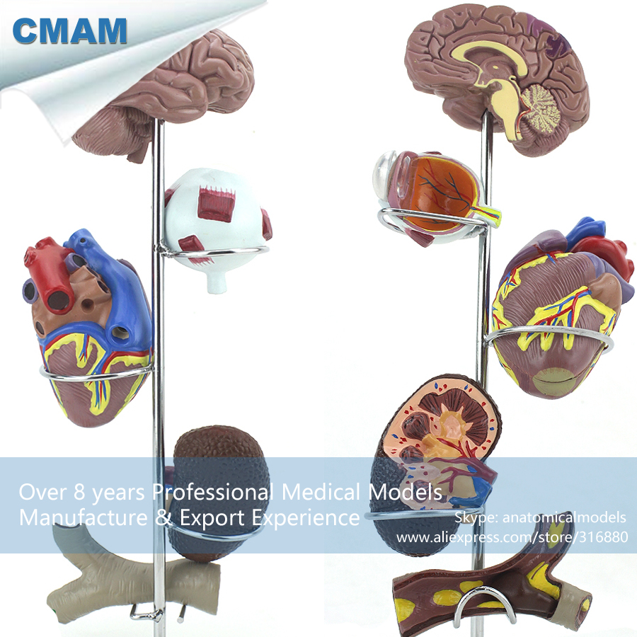 CMAM-HEART21 Small Size Human Hypertension Model, Medical Science Educational Teaching Anatomical Models cmam pm014 human anatomy common pathologies model of colon and rectum medical science educational teaching anatomical models