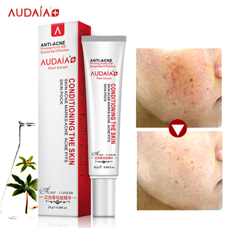 Aliexpress Com Buy Acne Scar Remove Skin Care Acne