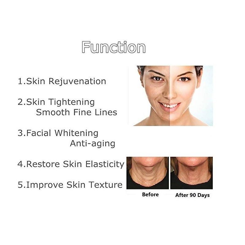Anti-Wrinkle Skin Tightening Facial Machine Suitable For Multiple Parts