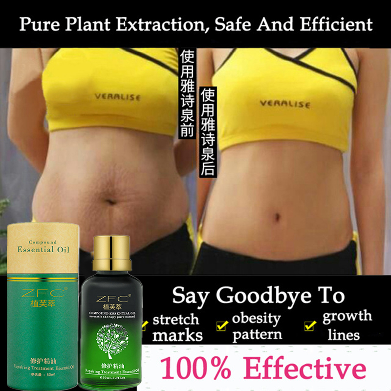 Repair-Cream Removal Stretch-Marks-Remover Skin-Care Obesity Natural Anti-Wrinkle Postpartum