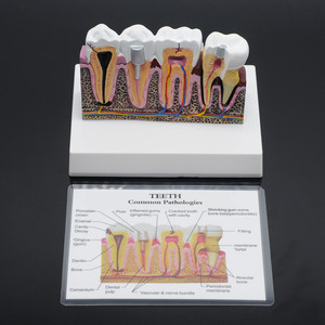 Image 2 - Dentist Lab Soft Gum Teeth Model Teeth Replacement For Study Student Practice