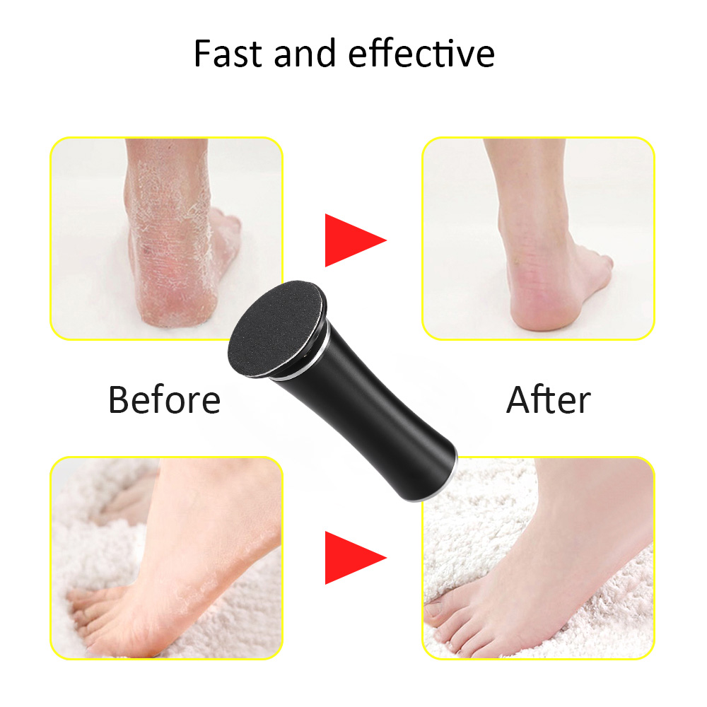 dd56a95a72 US $19.5 40% OFF|Foot Care For Pedicure Electric Grinding Foot File  Pedicure Dead Skin Heel File Callus Remover Shaver Tools Replacement  Roller-in ...