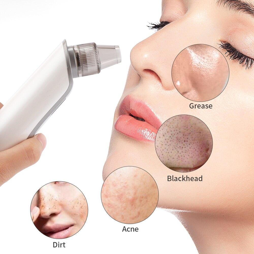 Removedor de cravo cuidados com a pele