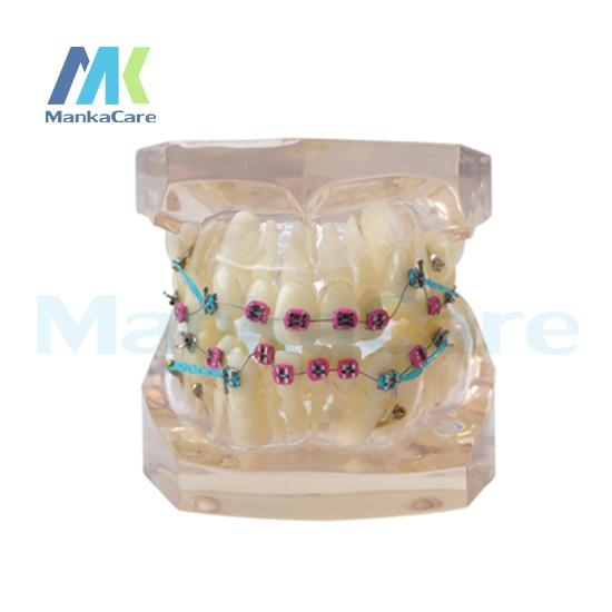 Manka Care -  24 pcs Tooth,all metal bracket Oral Model Teeth Tooth ModelManka Care -  24 pcs Tooth,all metal bracket Oral Model Teeth Tooth Model