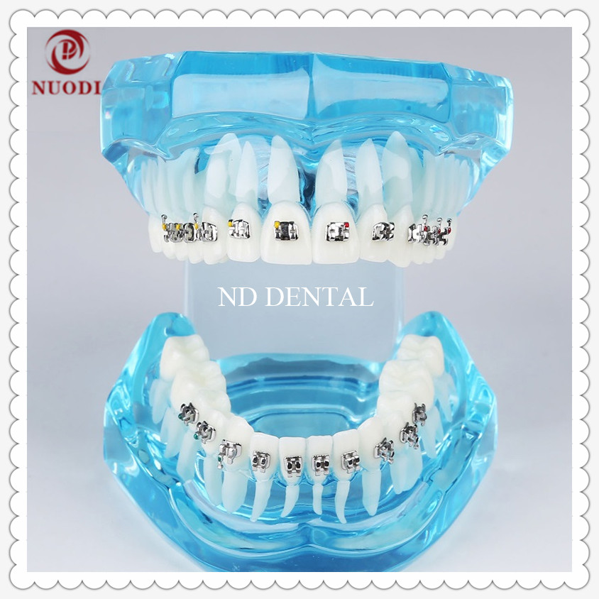 Dental Model M3001/Orthodontic practice model with bracket/Pink transparent tooth model/Dental Study teeth model orthodontic transparent dental orthodontic mallocclusion model with brackets archwire buccal tube tooth extraction for patient communication