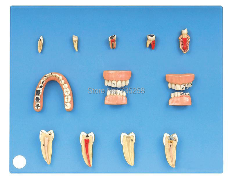 Dental Diseases Model,Dental Pathological Model soarday dental endodontic restoration model teaching communication model pathological display dental caries