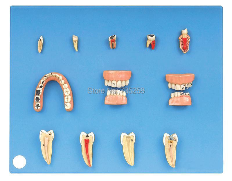 Dental Diseases Model,Dental Pathological Model александра треффер под пиратским флагом фантазии натему произведений р сабатини