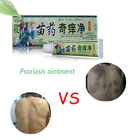 DUS 100% Original Powerful Professional Cure Psoriasis Ointment Original From Vietnam Native Medicine Ingredient Security