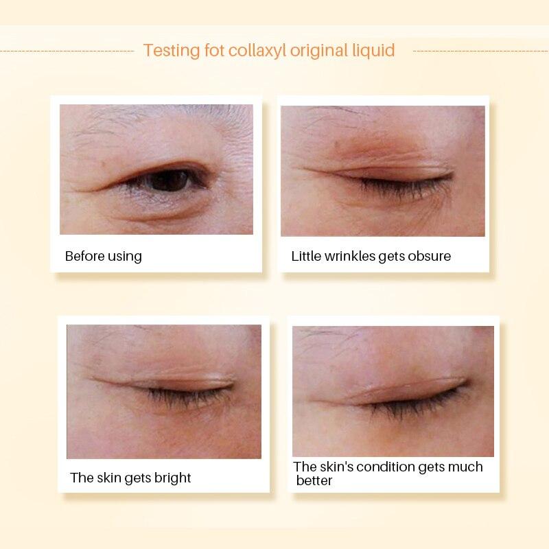 Image 4 - Hyaluronic Acid Argireline Collagen Peptides Whitening Cream Moisturizing Anti aging Wrinkle Essence Scar Remove Serum Face Care-in Serum from Beauty & Health
