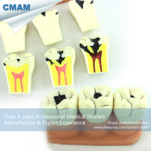 CMAM-TOOTH02 Dental Caries Demonstration Teeth Model for Dental Teaching Communication