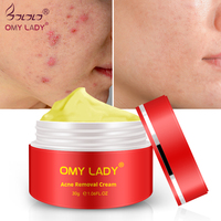 Strentch Marks Acne Scar Remover Acne Treatment Shrink Pores Gel Bleaching Creams Whitening Moisturizing Face Cream 30g Facial Self Tanners & Bronzers