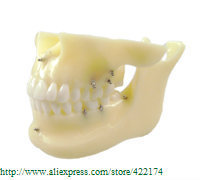 Free Shipping Implant model with orthodontics dental tooth teeth dentist anatomical anatomy model odontologia