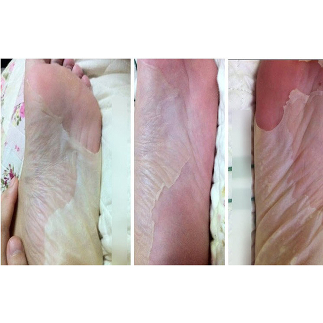 foot treatment to remove dead skin
