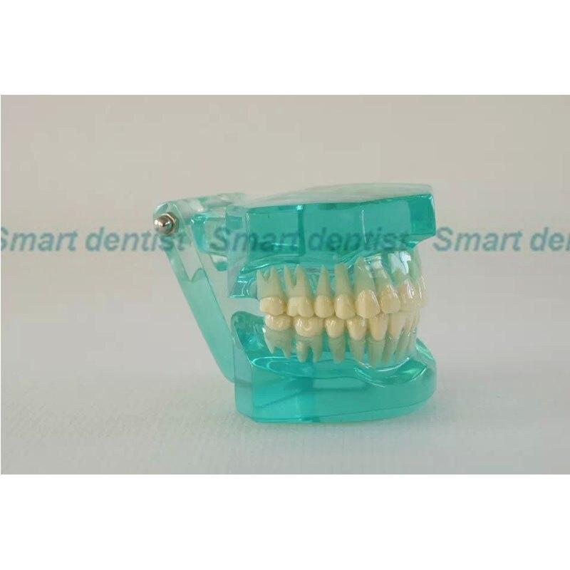 2016 [CMAM] прозрачная модель челюстей с зубами, взрослый Стандартный стоматологический, Обучающие модели пациента> Анатомия зубов (АНА)