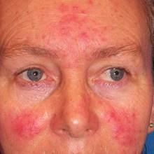 Rosacea cream Red nose ointment remove blackhead