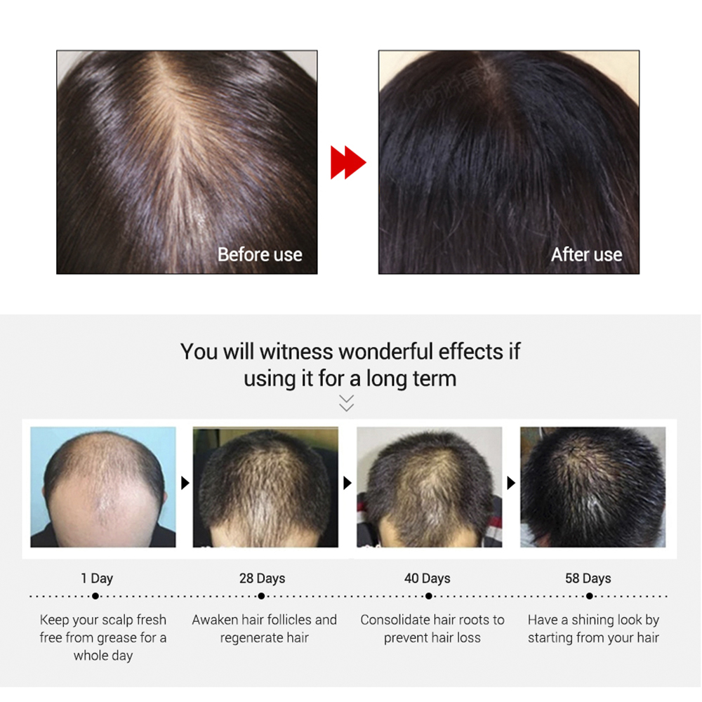 LANBENA Hair Growth Essential Oil Liquid Fast Powerful Hair Growth Essence Treatment Preventing Hair Loss Products for Men 20ml 3