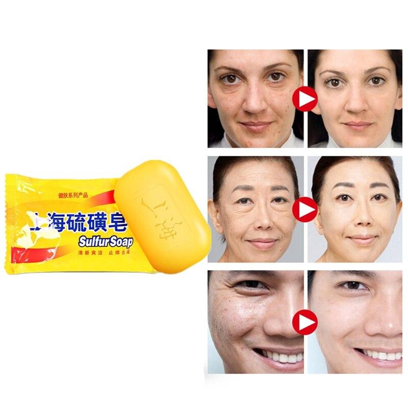 Powerful 85g Shanghai Sulfur Soap Skin Conditions Acne Psoriasis Seborrhea Mite Anti Fungus Body Care