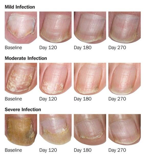 Herbal Antibacterial Nail Fungus Treatment Essential Oil Serum ...
