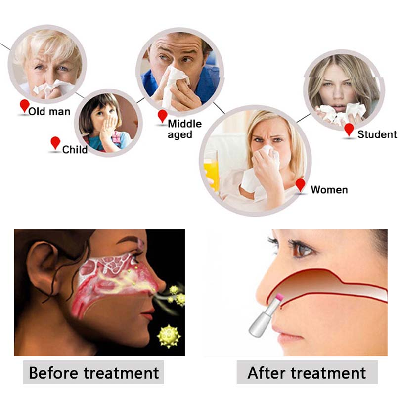 Beurha Health Care BioNase Rhinitis Sinusitis Nose Therapy Massage Cure Hay Fever Low Frequency Pulse Laser Therapentic Masseu bionase nose rhinitis allergy laser sinusitis therapy massage tool hay fever low frequency pulse and laser therapy instrument