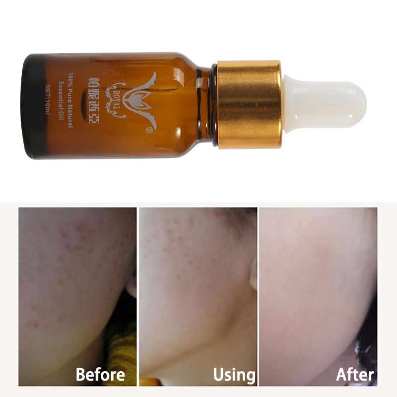 10ml Essence full-body whitening chicken skin repair essential oils remove dead skin goose bumps pimples folliculitis