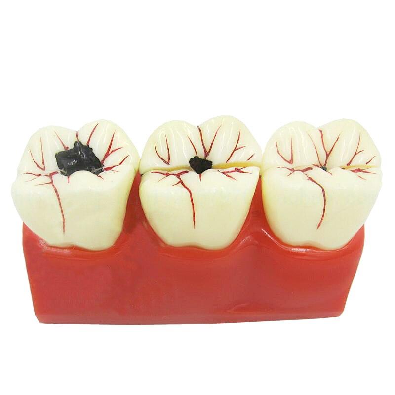 1 PC 4 fois le modèle de dents de maladie de prothèse dentaire modèle de dent de décomposition de carie pour l'enseignement médical dentaire de démonstration