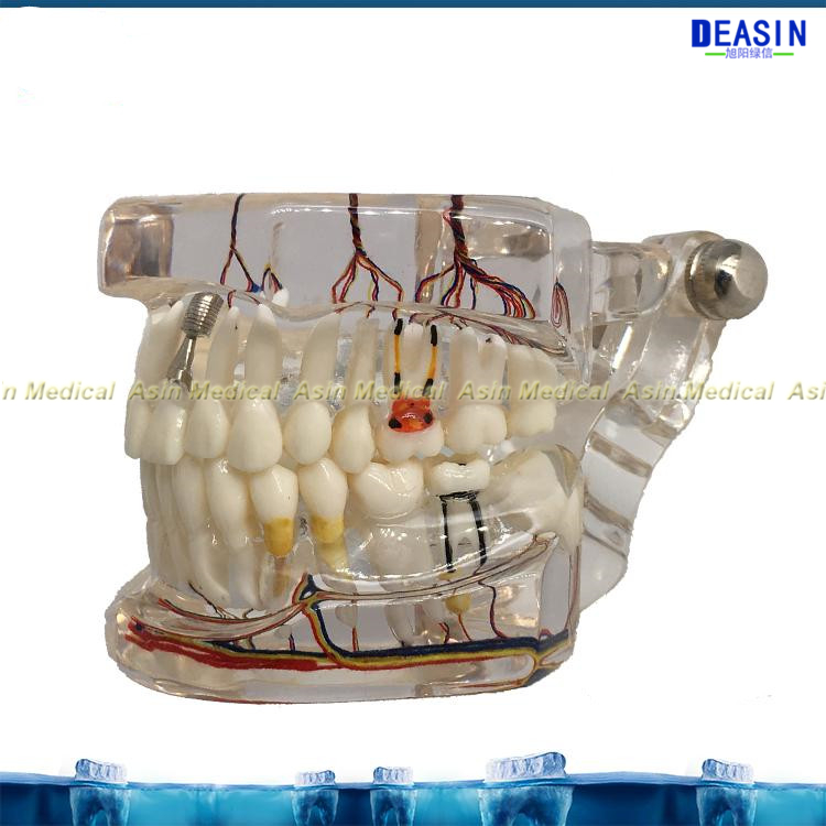 New dental implant teeth model with nerve Transparent pathological Repair model Teaching demonstration model soarday children primary teeth alternating transparent model dental root clearly displayed dentist patient communication