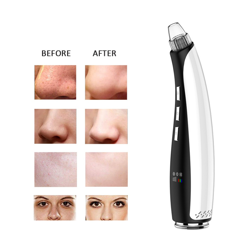 Details about Blackhead Removal Pore Cleanser Vacuum Extraction Facial Acne  Pore Cleanser