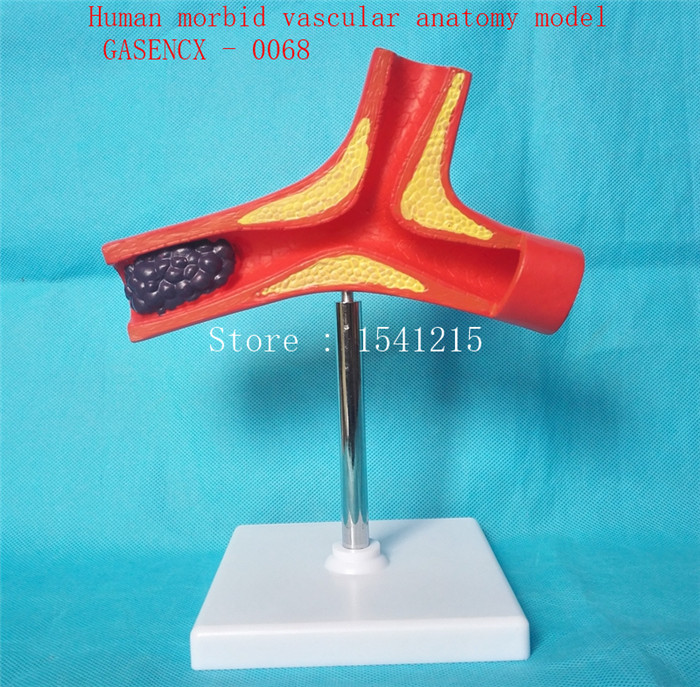 Lesion vascular model Medical teaching model Vascular occlusion model Human morbid vascular anatomy model - GASENCX - 0068