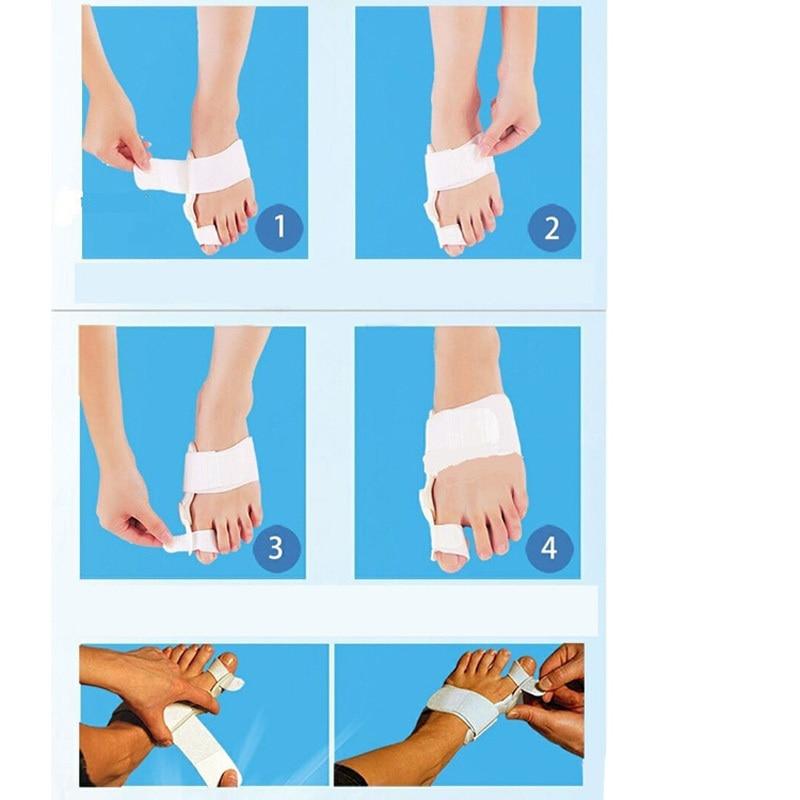 1 Paar Voetverzorging Hallux Valgus Corrector Orthopedische Valgus - Huidverzorgingstools - Foto 6