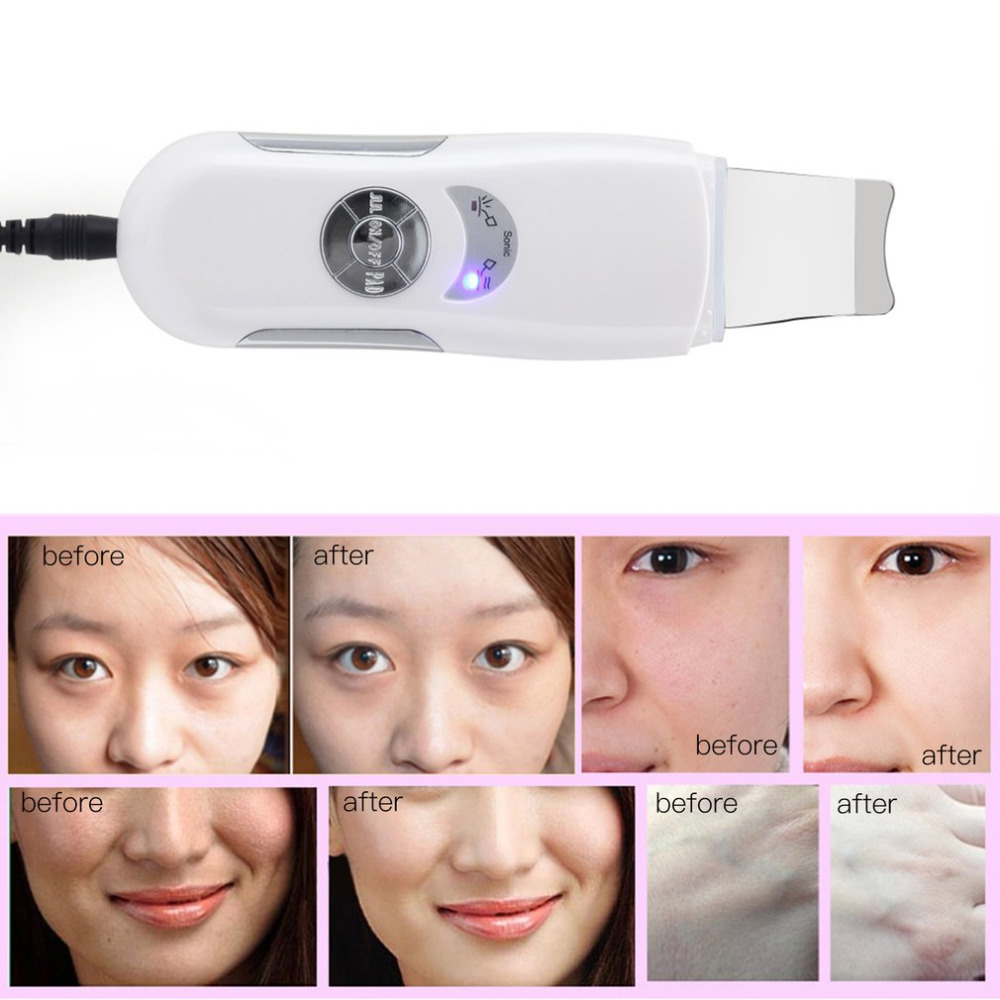 NEW Ultrasonic Skin Scrubber Cleaner Face Cleaning Acne Removal Facial Spa Massager Ultrasound Vibration Peeling Massage Machine deep face cleansing brush facial cleanser 2 speeds electric face wash machine