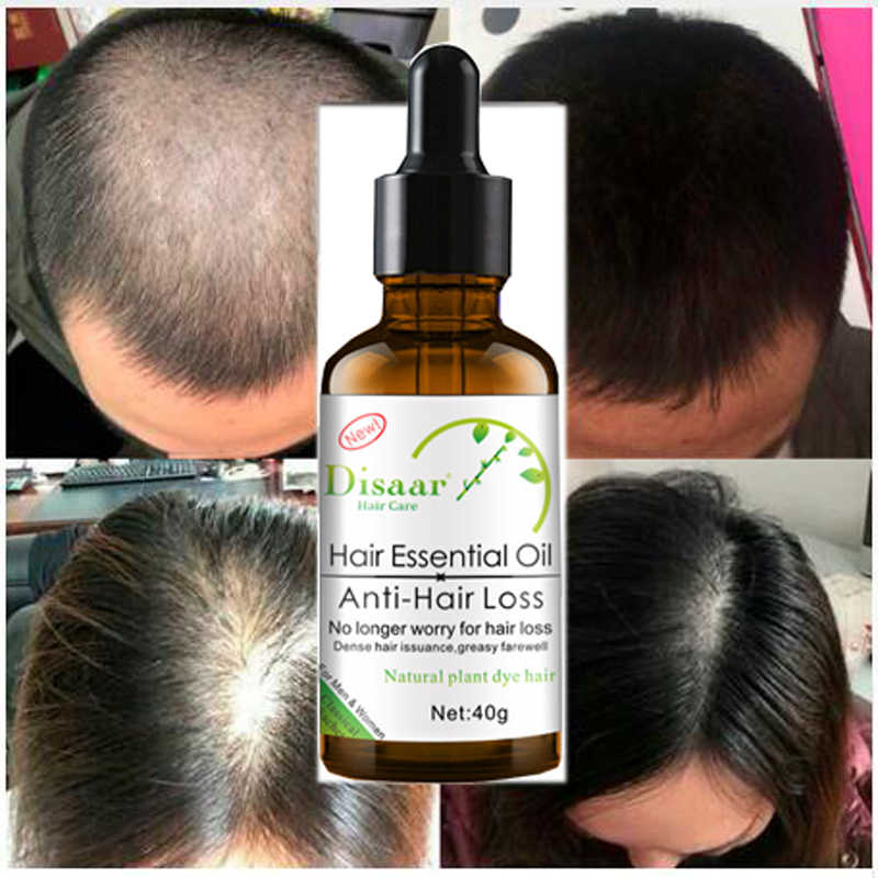 Disaar Fast Powerful Hair Growth Essence Products Essential Oil Treatment Preventing Hair Loss Hair Care Andrea 30ml Essential Oil Aliexpress