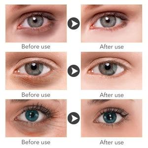 Image 3 - MEIKING קולגן קריסטל מסכת עיני ג ל עיניים תיקוני חומצה היאלורונית מסיר כהה עיגולים אנטי גיל שינה מסכת לחות 60pcs