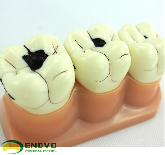 Dental caries decomposition model dental pathologic dental caries model doctor-patient communication demonstration soarday 1 piece 2 times dental pathological model display deep caries shallow caries teaching model