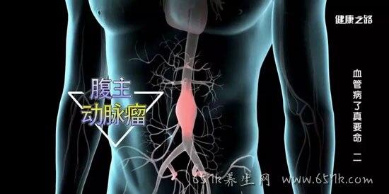 健康之路20190614,腹动脉瘤?#30007;?#25104;,治疗方法,血管病了真要命2