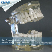 CMAM-DT305 Transparent Dental Model Show 3 Age Infant Teeth Development