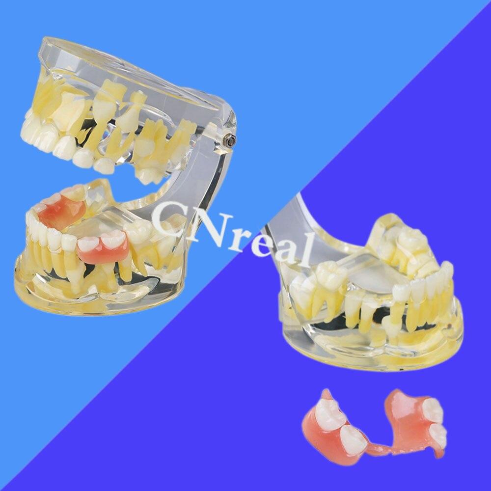 Modèle alternatif de dents décidues/permanentes dentaires de 1 pièce avec le dispositif de retenue pour l'enseignement de dentisterie
