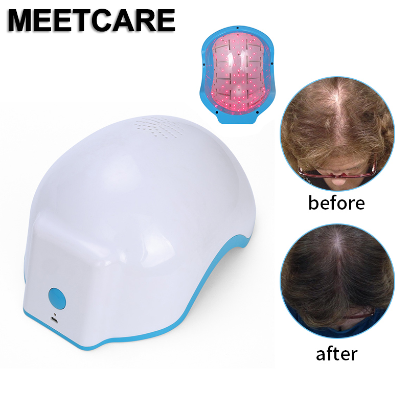 Therapy Laser Hair Growth Helmet Anti Hair Loss Device 80
