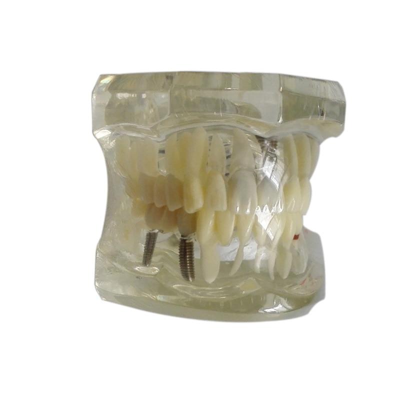 Dental Restoration Model Dental Implant Disease Teeth Model with Restoration Bridge Tooth Dentist for Medical Science Teaching rakesh kumar non markovian queues with catastrophe and restoration