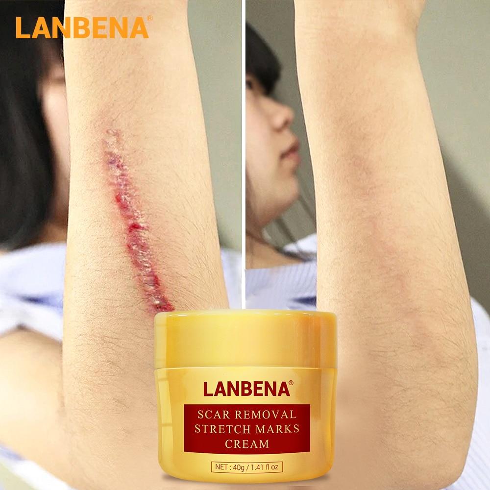 LANBENA Scar Removal Cream Acne Treatment Repairing Scar Blackhead Shrink Pores Whitening Moisturizing Skin Care Creme 40g