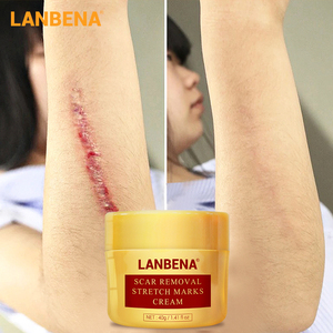LANBENA Scar Removal Cream Acne Treatment Repairing Scar Blackhead Shrink Pores Whitening Moisturizing Skin Care creme 40g