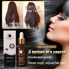 30ml Hair Care Fast Powerful Hair Growth Products Regrowth Essence Liquid Treatment Preventing Hair Loss For Men And Women(China)