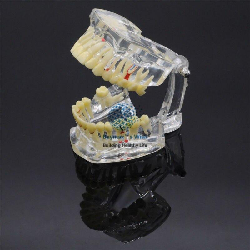 Импланты болезни зуб для стоматологов патологическая штранг-прессования зубов Модель 4001