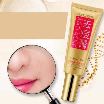 2Pcs OneSpring Skin Care Anti Acne Cream Oil Control Shrink Pores Acne Scar Remove Removal Gel Cream Face Care