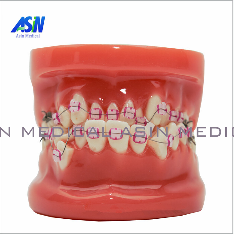 Orthodontic tooth model with Ceramic bracket model Doctor patient communication teaching model dental materials soarday children primary teeth alternating transparent model dental root clearly displayed dentist patient communication