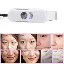 Skin Scrubber Ultrasonic Micro Electric Facial Dead Skin Black Head Remover Shovel Skin Household Beauty face
